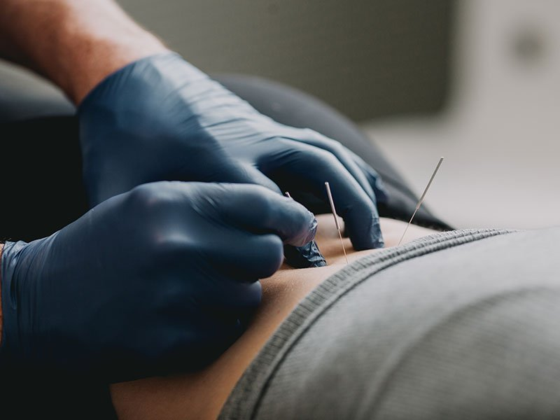 We provide Functional Dry Needling, which is a soft tissue technique that is extremely effective and can speed recovery time for acute injuries